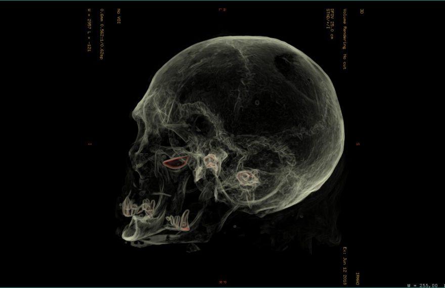 Tomografia da cabeça da múmia
